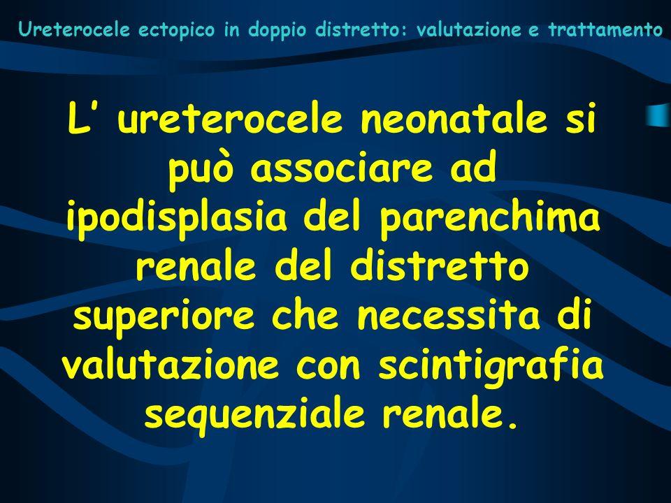 Ureterocele ectopico in doppio distretto: valutazione e trattamento L ureterocele neonatale si può associare ad ipodisplasia del parenchima renale del