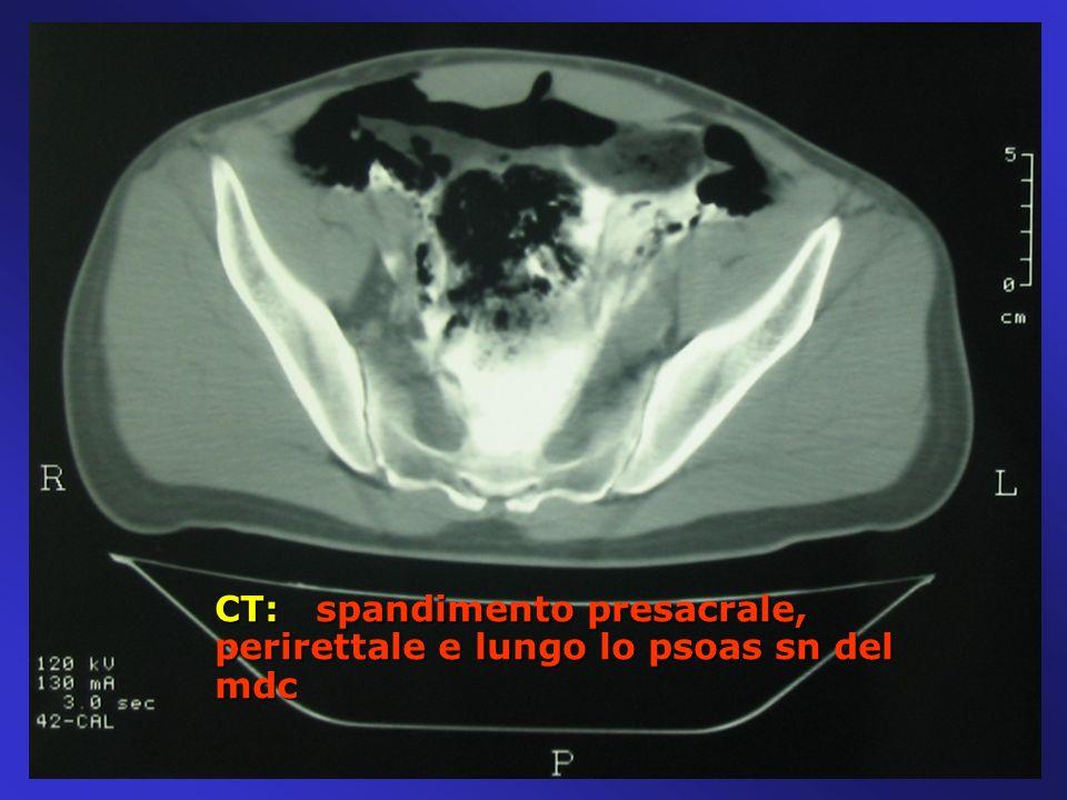 CT: spandimento presacrale, perirettale e lungo lo psoas sn del mdc CT: spandimento presacrale, perirettale e lungo lo psoas sn del mdc