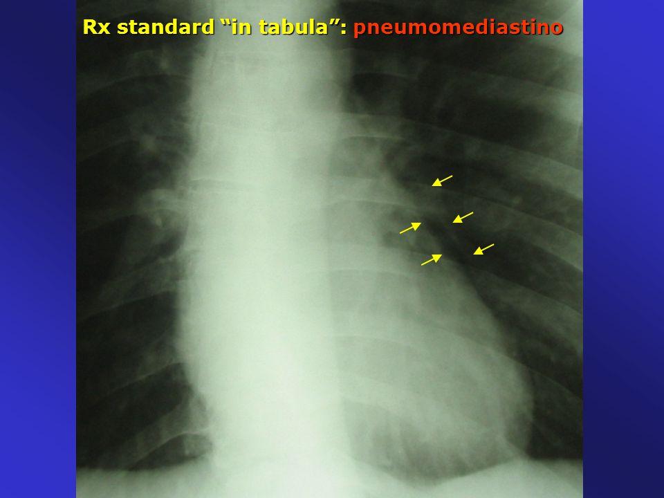 Rx standard in tabula: pneumomediastino