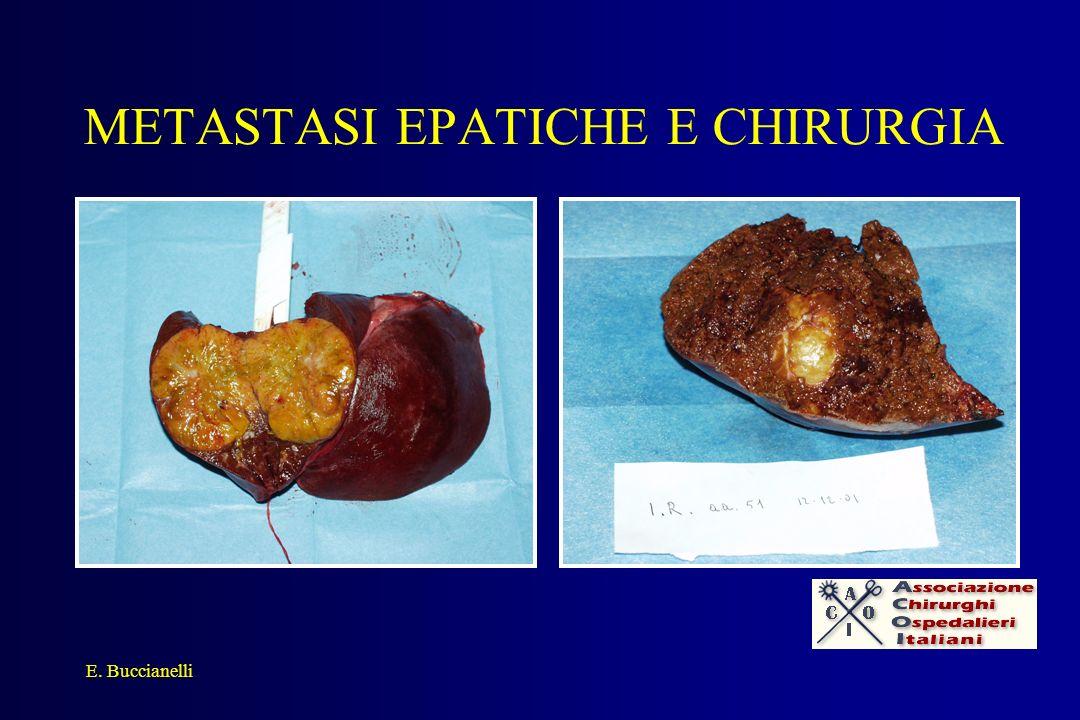 METASTASI EPATICHE E CHIRURGIA E. Buccianelli