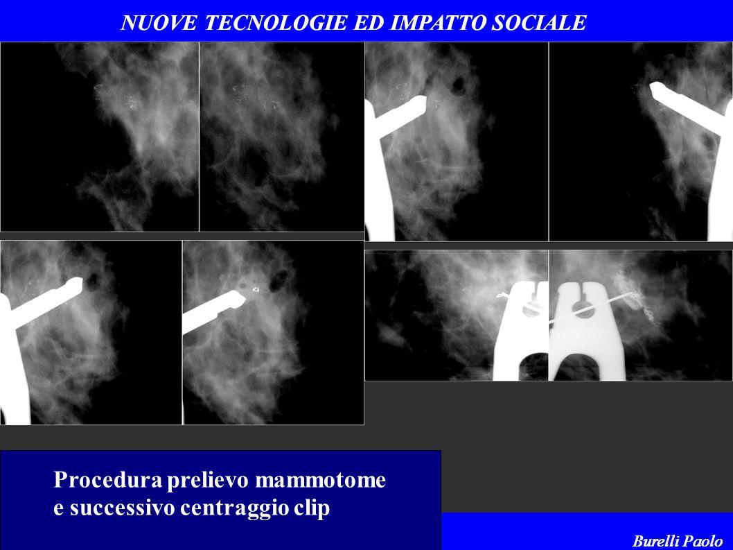 NUOVE TECNOLOGIE ED IMPATTO SOCIALE ACOI - Montecatini Terme 26 maggio 2005 Burelli Paolo NUOVE TECNOLOGIE ED IMPATTO SOCIALE ACOI - Montecatini Terme