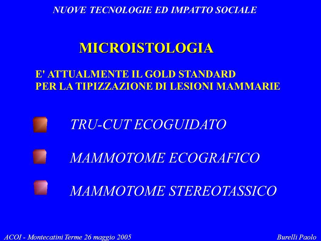 NUOVE TECNOLOGIE ED IMPATTO SOCIALE ACOI - Montecatini Terme 26 maggio 2005 Burelli Paolo MICROISTOLOGIA E ATTUALMENTE IL GOLD STANDARD PER LA TIPIZZAZIONE DI LESIONI MAMMARIE TRU-CUT ECOGUIDATO MAMMOTOME ECOGRAFICO MAMMOTOME STEREOTASSICO