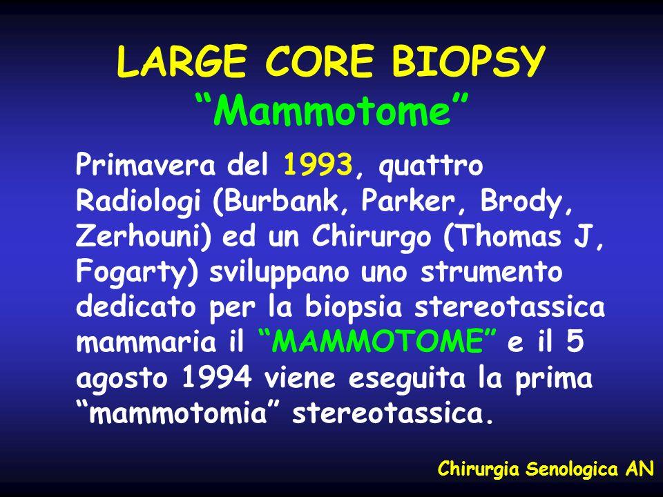 LARGE CORE BIOPSY Mammotome Primavera del 1993, quattro Radiologi (Burbank, Parker, Brody, Zerhouni) ed un Chirurgo (Thomas J, Fogarty) sviluppano uno