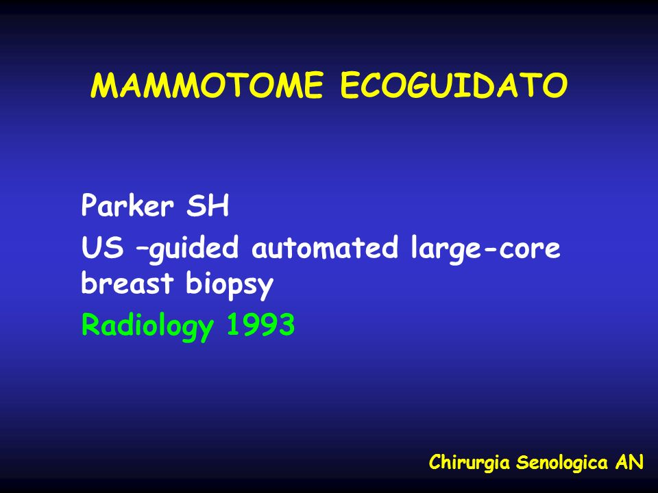 MAMMOTOME ECOGUIDATO Parker SH US –guided automated large-core breast biopsy Radiology 1993 Chirurgia Senologica AN