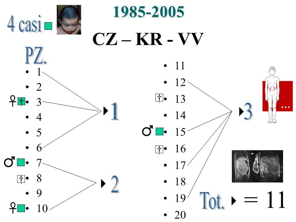 CZ – KR - VV 1 2 3 4 5 6 7 8 9 10 11 12 13 14 15 16 17 18 19 20 1985-2005 = 11