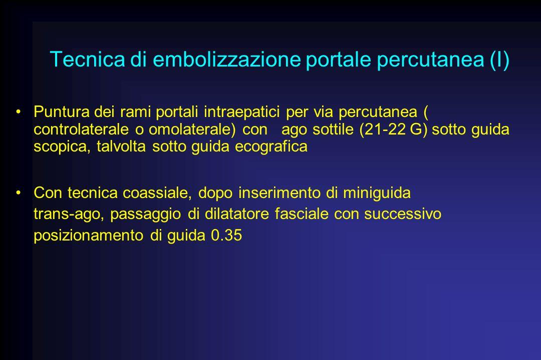 Tecnica di embolizzazione portale percutanea (I) Puntura dei rami portali intraepatici per via percutanea ( controlaterale o omolaterale) con ago sott