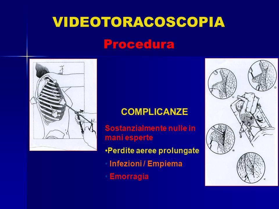COMPLICANZE Sostanzialmente nulle in mani esperte Perdite aeree prolungate Infezioni / Empiema Emorragia VIDEOTORACOSCOPIA Procedura