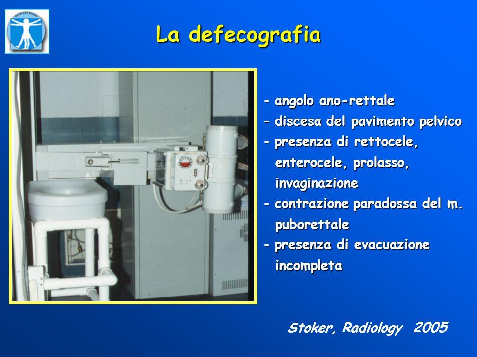 La defecografia - angolo ano-rettale - discesa del pavimento pelvico - presenza di rettocele, enterocele, prolasso, enterocele, prolasso, invaginazion