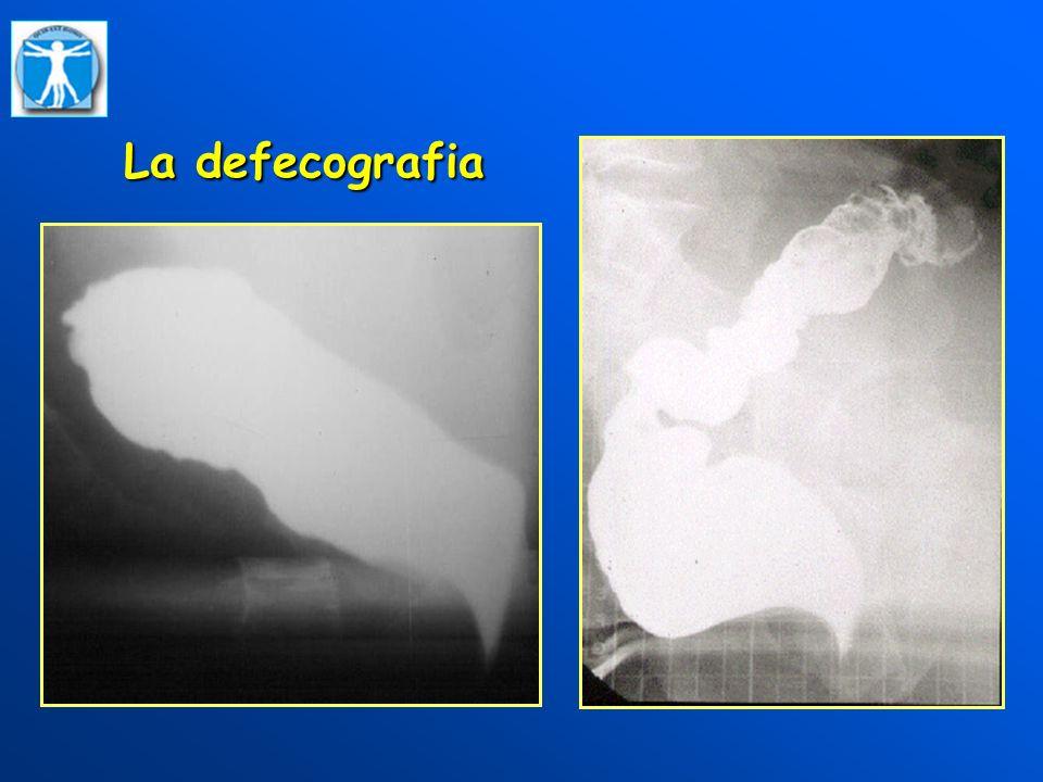 La defecografia