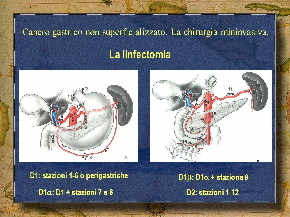Cancro gastrico non superficializzato. La chirurgia mininvasiva. La linfectomia D1: stazioni 1-6 o perigastriche D2: stazioni 1-12 D1 : D1 + stazioni
