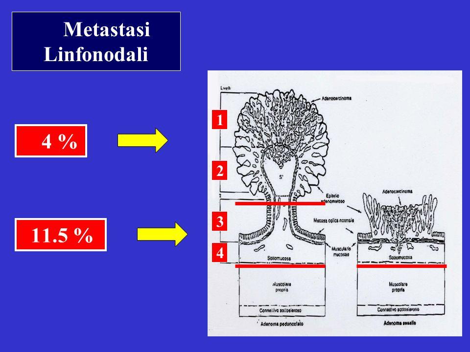 11.5 % Metastasi Linfonodali 4 % 1 2 3 4