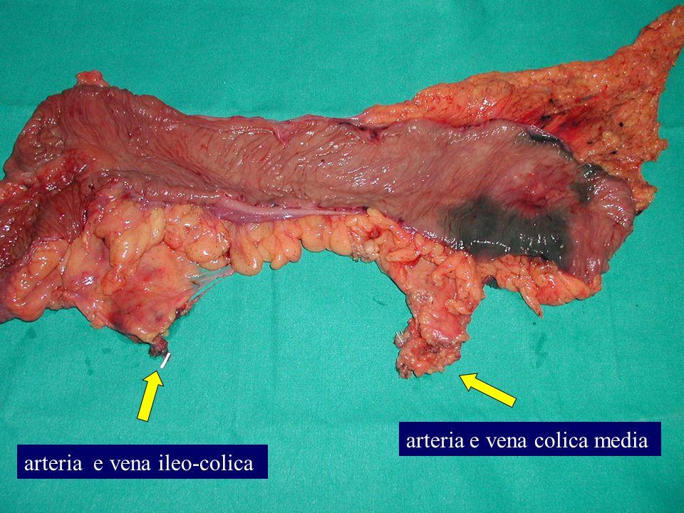 arteria e vena ileo-colica arteria e vena colica media
