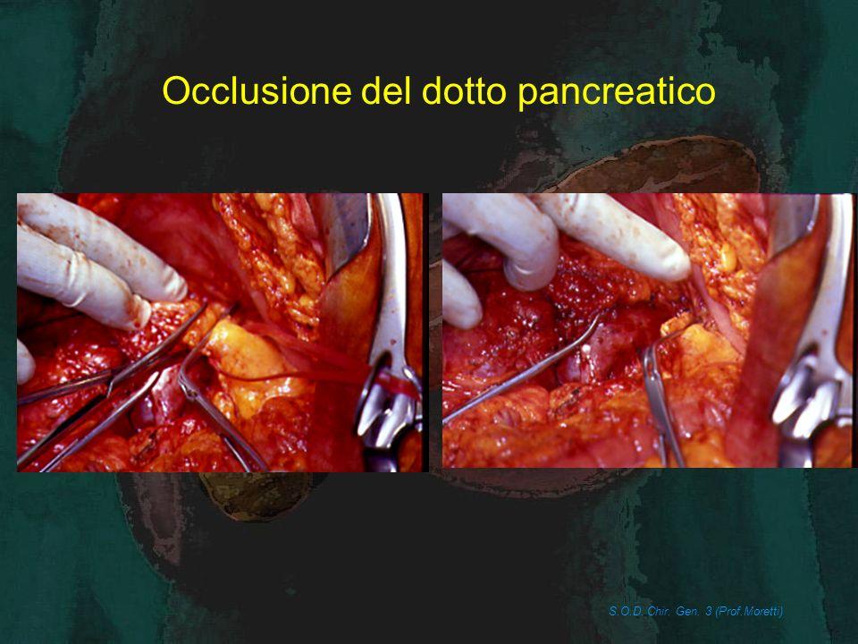 Occlusione del dotto pancreatico S.O.D. Chir. Gen. 3 (Prof.Moretti)