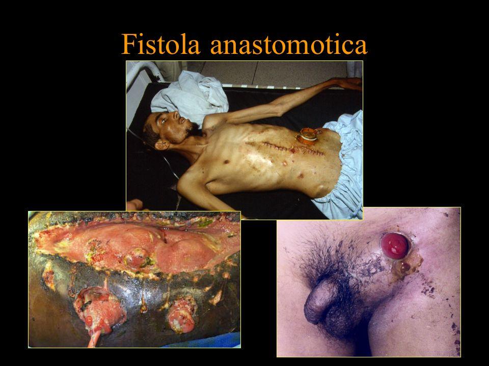 Fistola anastomotica FISTOLA MATURA CHIUSURA 14 (66,6%) PERMANENZA FISTOLA 3 (14,2%) PERMANENZA COLOST.