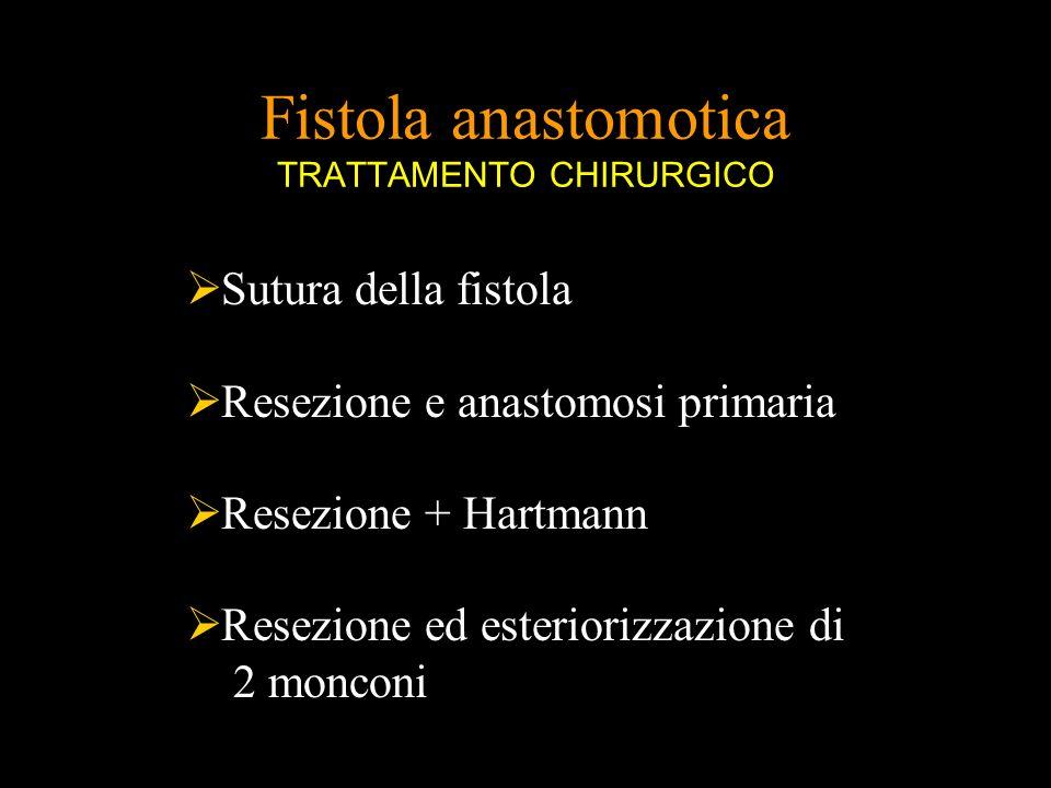 Fistola anastomotica TRATTAMENTO CHIRURGICO Sutura della fistola Resezione e anastomosi primaria Resezione + Hartmann Resezione ed esteriorizzazione d