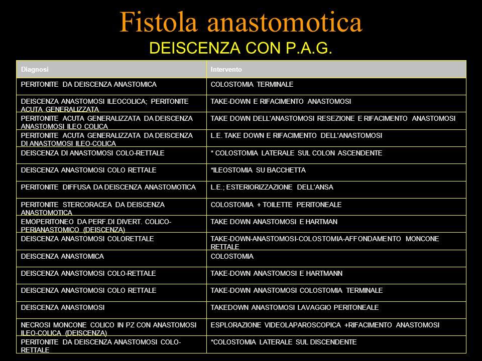 Fistola anastomotica DEISCENZA CON P.A.G. DiagnosiIntervento PERITONITE DA DEISCENZA ANASTOMICACOLOSTOMIA TERMINALE DEISCENZA ANASTOMOSI ILEOCOLICA; P