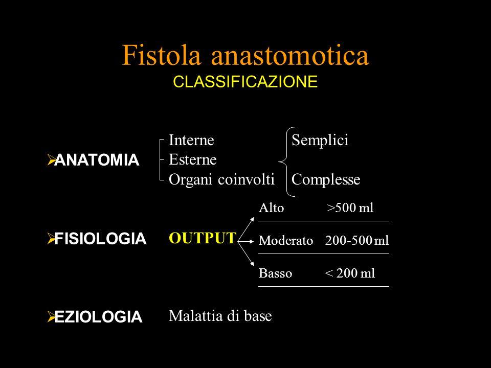 Fistola anastomotica CLASSIFICAZIONE ANATOMIA FISIOLOGIA EZIOLOGIA Interne Esterne Organi coinvolti Semplici Complesse OUTPUT Alto >500 ml Moderato 20