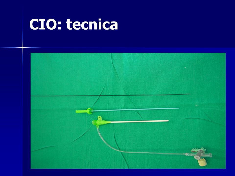 CIO: tecnica