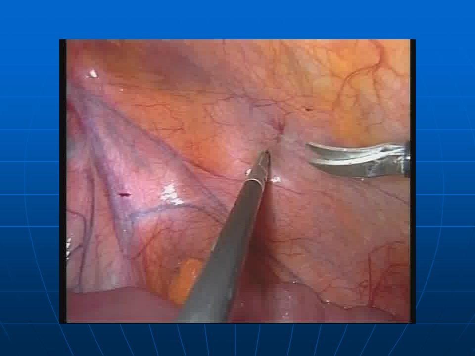 La prevenzione delle complicanze Preparazione del legamento di Cooper Lesione vasi corona-mortis Lesioni vescicali