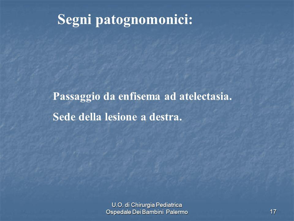U.O. di Chirurgia Pediatrica Ospedale Dei Bambini Palermo17 Passaggio da enfisema ad atelectasia. Sede della lesione a destra. Segni patognomonici: