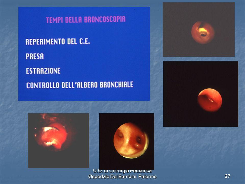 U.O. di Chirurgia Pediatrica Ospedale Dei Bambini Palermo27