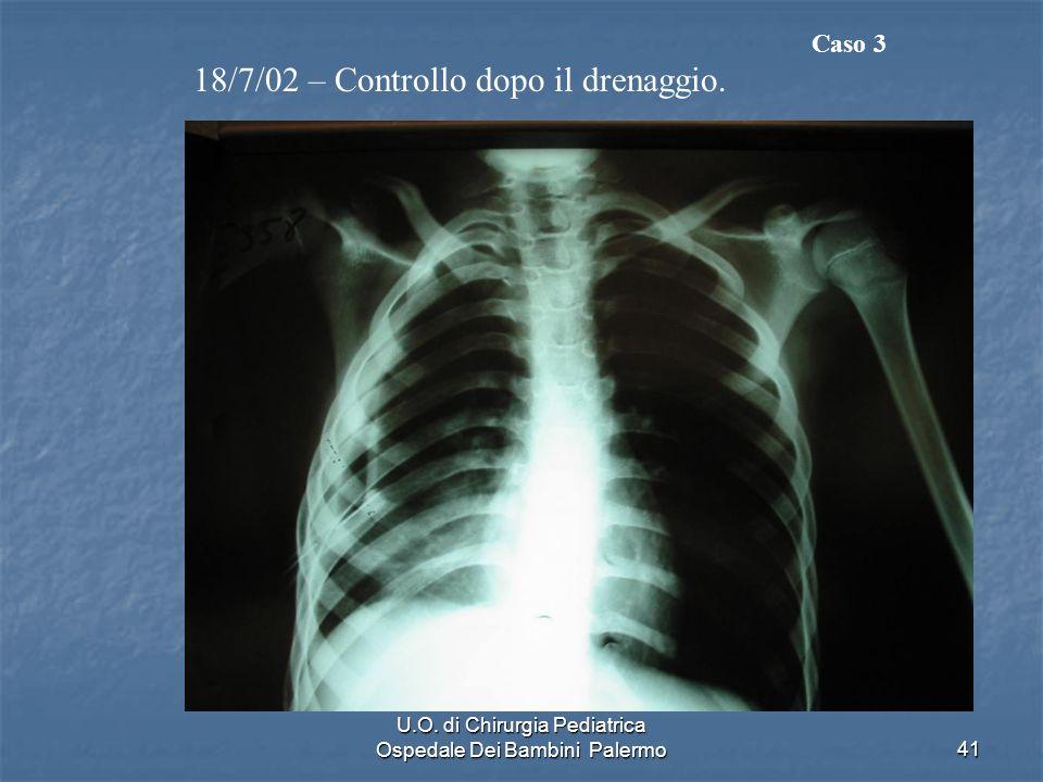 U.O. di Chirurgia Pediatrica Ospedale Dei Bambini Palermo41 18/7/02 – Controllo dopo il drenaggio. Caso 3