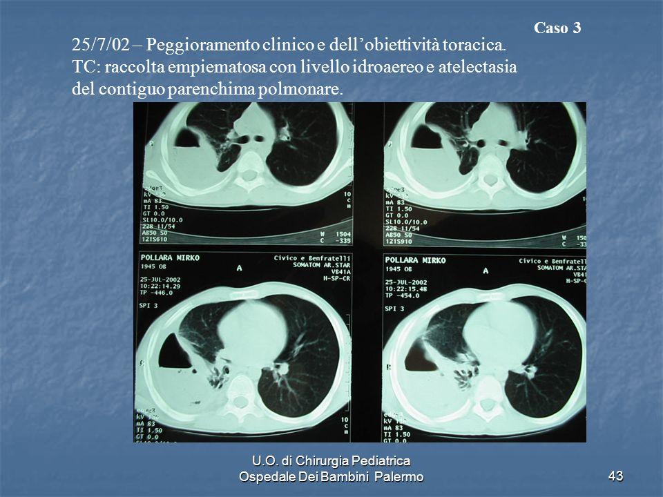 U.O. di Chirurgia Pediatrica Ospedale Dei Bambini Palermo43 25/7/02 – Peggioramento clinico e dellobiettività toracica. TC: raccolta empiematosa con l