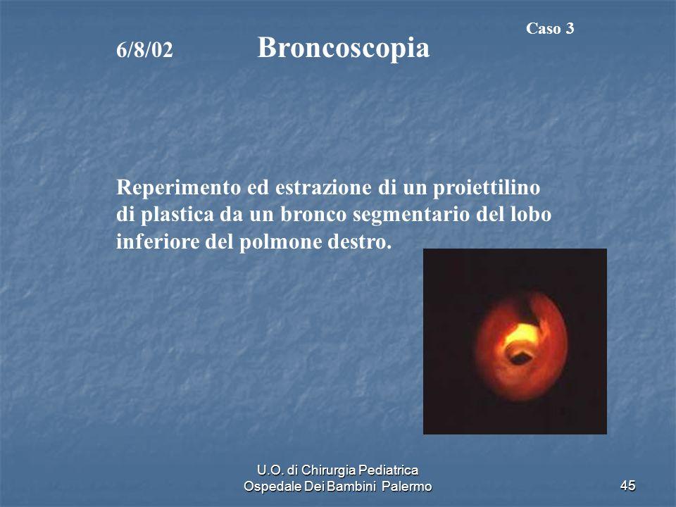 U.O. di Chirurgia Pediatrica Ospedale Dei Bambini Palermo45 6/8/02 Broncoscopia Reperimento ed estrazione di un proiettilino di plastica da un bronco