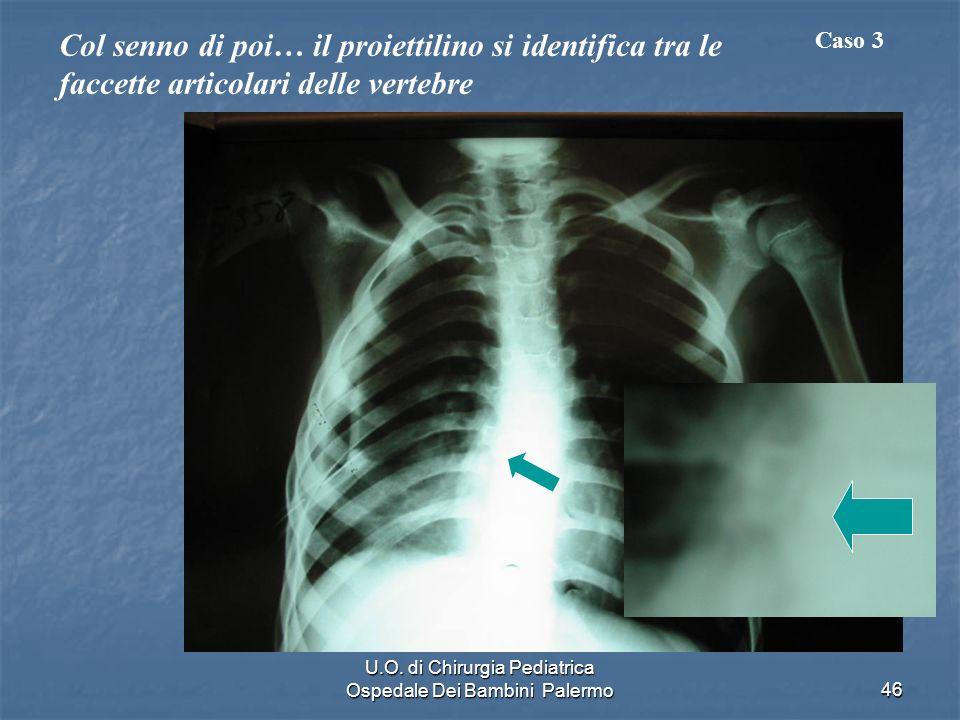U.O. di Chirurgia Pediatrica Ospedale Dei Bambini Palermo46 Col senno di poi… il proiettilino si identifica tra le faccette articolari delle vertebre