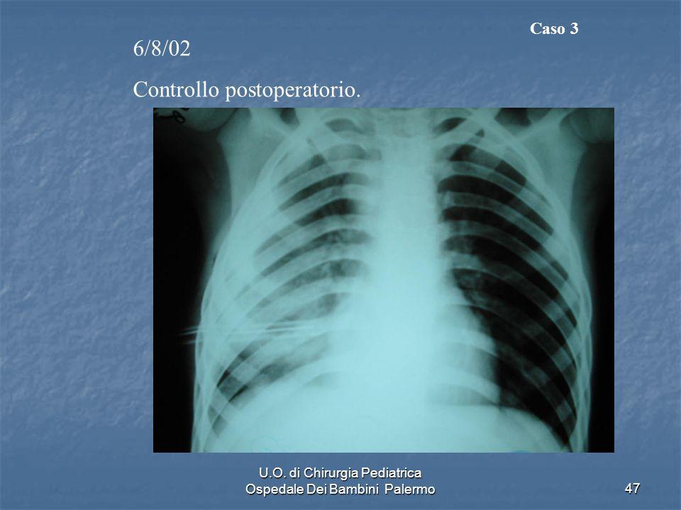 U.O. di Chirurgia Pediatrica Ospedale Dei Bambini Palermo47 6/8/02 Controllo postoperatorio. Caso 3