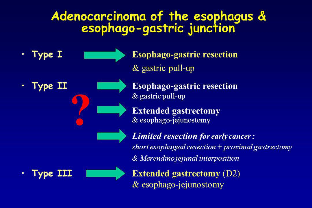 Adenocarcinoma of the esophago-gastric junction Residual cancer at the resection margin 2.5 - 35% m icroscopic evidence of cancer (R1) Papachristou 1980, Mandard 1981, Sons 1986, Husemann 1989, Peracchia 1991, Stipa 1992, Bozzetti 1982 e 2000, Fekete 1997, Kodera 1999, Guillem 1999, Mattioli 2001, Mariette 2003, Ito 2004 palpation & gross inspection: unreliable intraoperative frozen section: 9-21% false negative rates proximal resection margin length of at least 6-10 cm (on prefixed fresh resected specimen *) Papachristou 1980, Suzuki 1990, Cordiano 1996, Mattioli 2001, Mariette 2003, Ito 2004 distal resection margin length of at least 2-4 cm ( on prefixed fresh resected specimen *) Siewert 2000, Mattioli 2001, Ito 2004 * prefixed fresh specimen measures 44-55% of the in situ length before resection