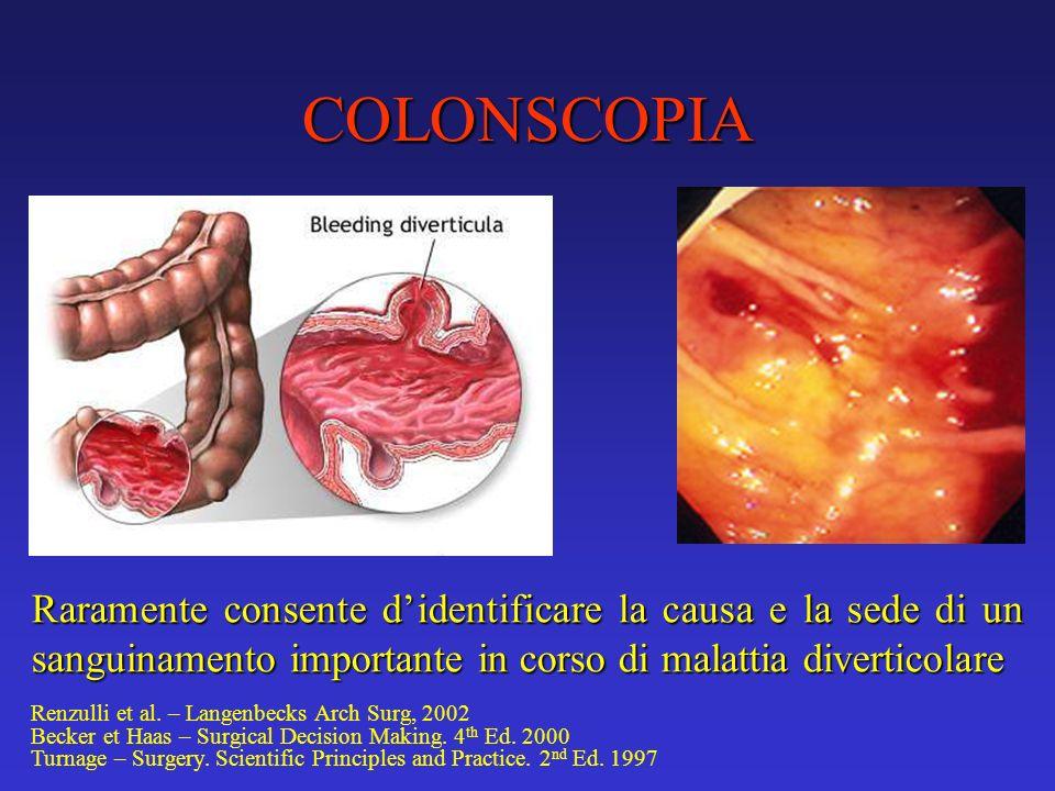 COLONSCOPIA Raramente consente didentificare la causa e la sede di un sanguinamento importante in corso di malattia diverticolare Renzulli et al. – La
