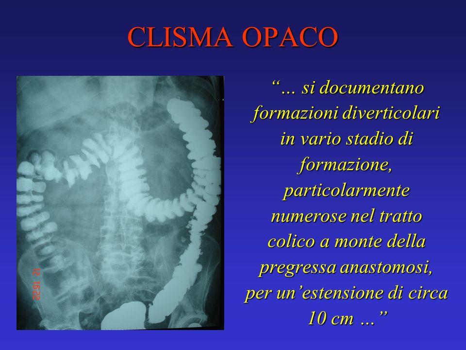 CLISMA OPACO … si documentano formazioni diverticolari in vario stadio di formazione, particolarmente numerose nel tratto colico a monte della pregres
