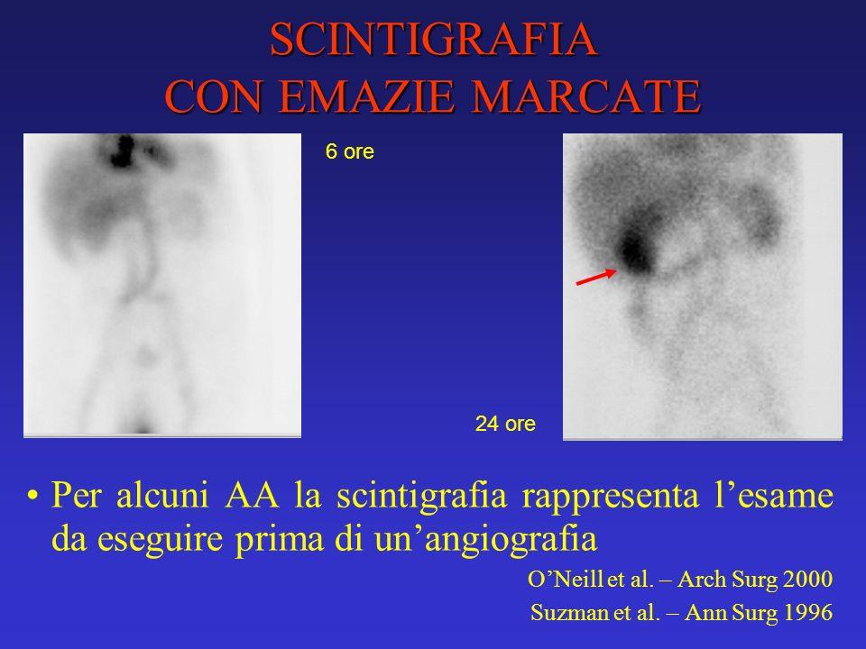 SCINTIGRAFIA CON EMAZIE MARCATE Per alcuni AA la scintigrafia rappresenta lesame da eseguire prima di unangiografia ONeill et al. – Arch Surg 2000 Suz