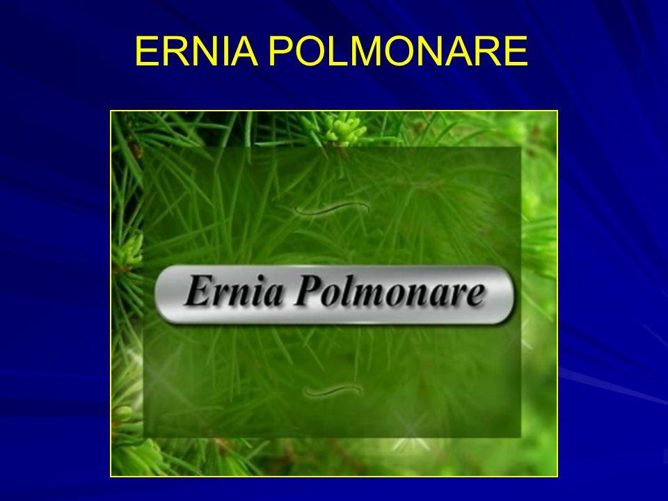ERNIA POLMONARE