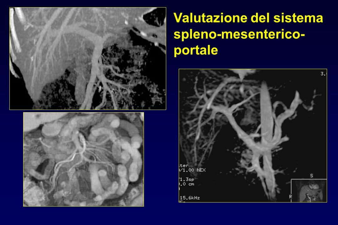Valutazione del sistema spleno-mesenterico- portale