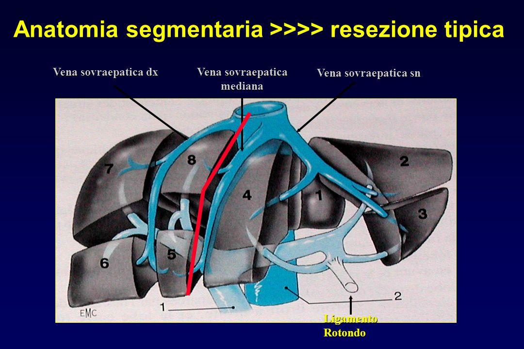 LigamentoRotondo Vena sovraepatica sn Vena sovraepatica mediana Vena sovraepatica dx Anatomia segmentaria >>>> resezione tipica