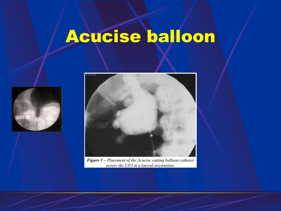 Acucise balloon