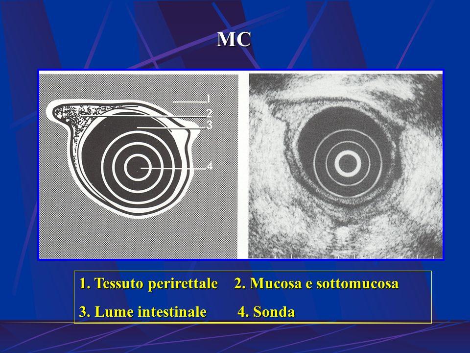1. Tessuto perirettale 2. Mucosa e sottomucosa 3. Lume intestinale 4. Sonda MC