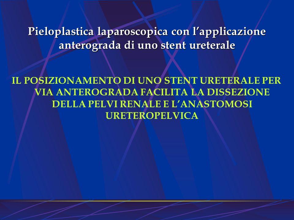 Pieloplastica laparoscopica con lapplicazione anterograda di uno stent ureterale IL POSIZIONAMENTO DI UNO STENT URETERALE PER VIA ANTEROGRADA FACILITA