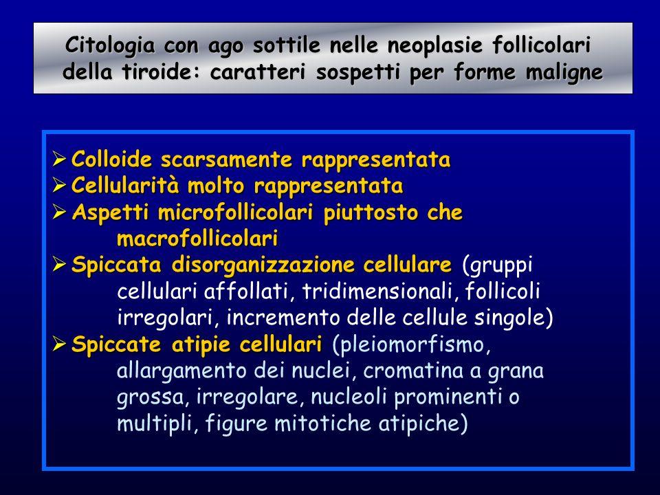 Colloide scarsamente rappresentata Colloide scarsamente rappresentata Cellularità molto rappresentata Cellularità molto rappresentata Aspetti microfol