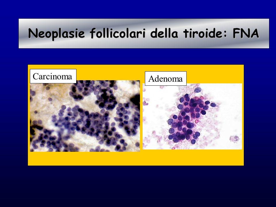 Carcinoma Adenoma Neoplasie follicolari della tiroide: FNA Neoplasie follicolari della tiroide: FNA