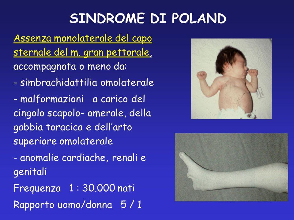 SINDROME DI POLAND Assenza monolaterale del capo sternale del m. gran pettorale, accompagnata o meno da: - simbrachidattilia omolaterale - malformazio