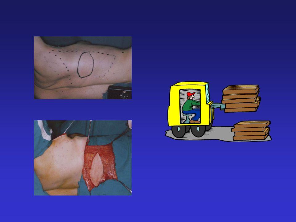 LIMITI Nella grande maggioranza dei casi è necessario integrare il volume con limpianto di una protesi +