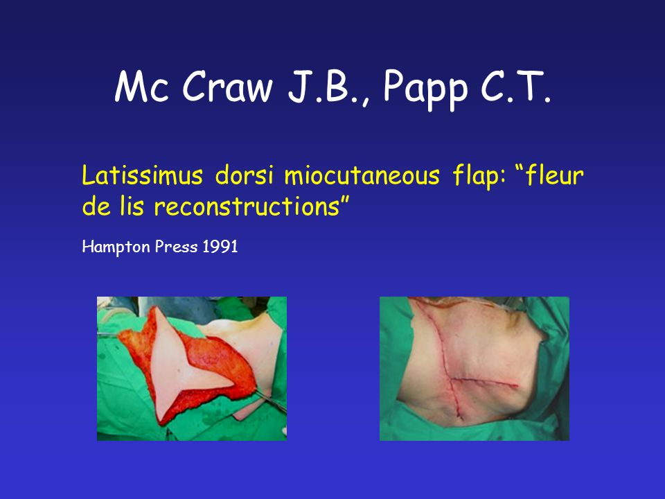 Mc Craw J.B., Papp C.T. Latissimus dorsi miocutaneous flap: fleur de lis reconstructions Hampton Press 1991