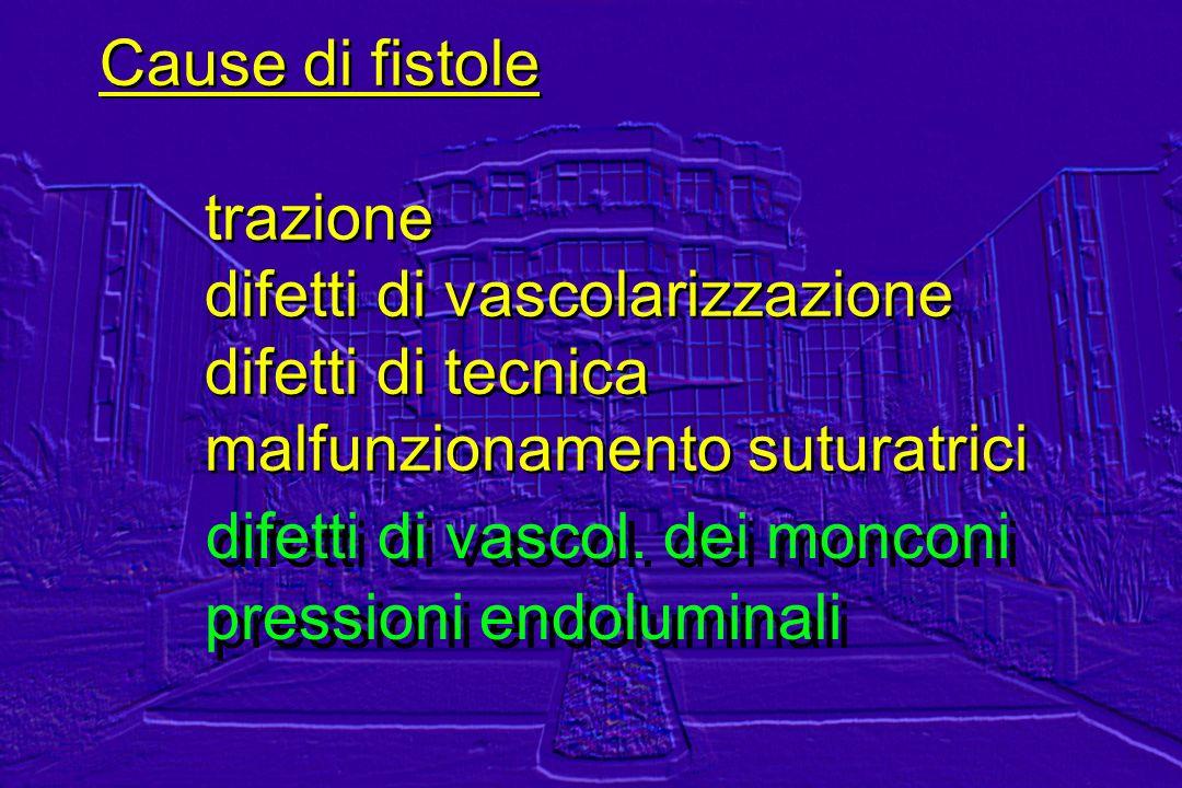 Cause di fistole trazione difetti di vascolarizzazione difetti di tecnica malfunzionamento suturatrici Cause di fistole trazione difetti di vascolariz