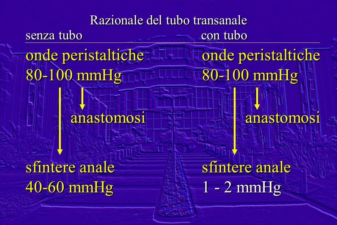 onde peristaltiche 80-100 mmHg onde peristaltiche 80-100 mmHg anastomosi sfintere anale 40-60 mmHg sfintere anale 40-60 mmHg Razionale del tubo transa