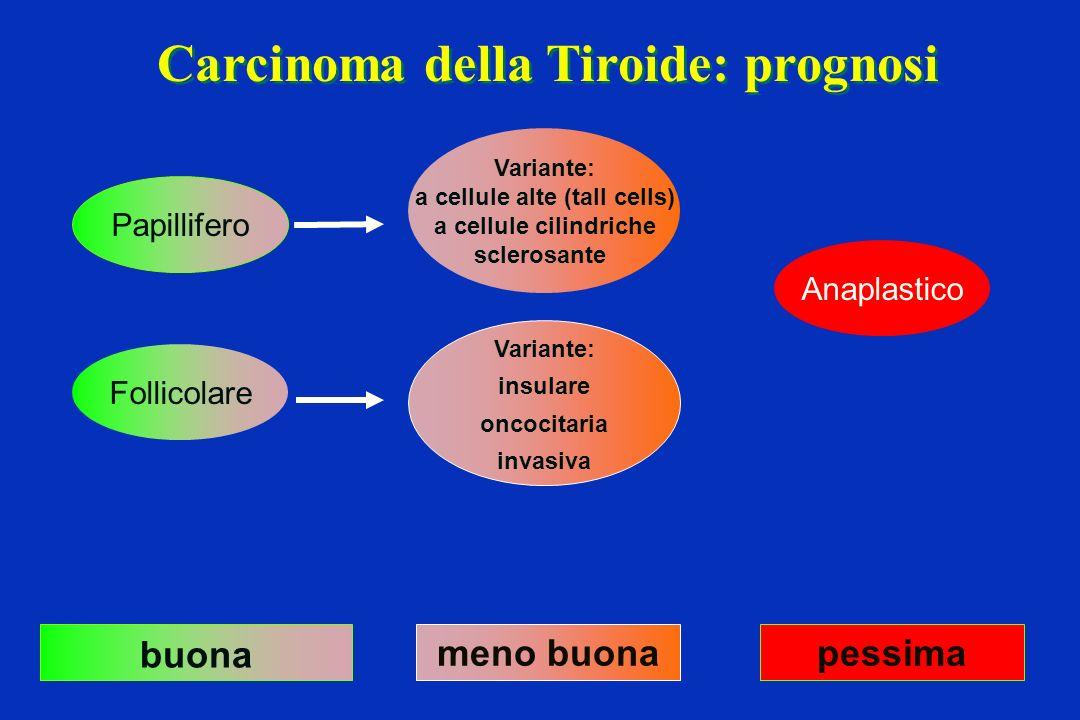 Carcinoma della Tiroide: prognosi Papillifero Follicolare Variante: a cellule alte (tall cells) a cellule cilindriche sclerosante Anaplastico buona me