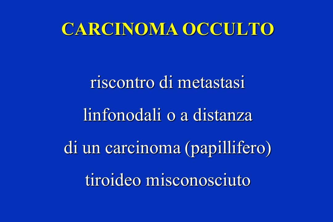 CARCINOMA OCCULTO riscontro di metastasi linfonodali o a distanza di un carcinoma (papillifero) tiroideo misconosciuto