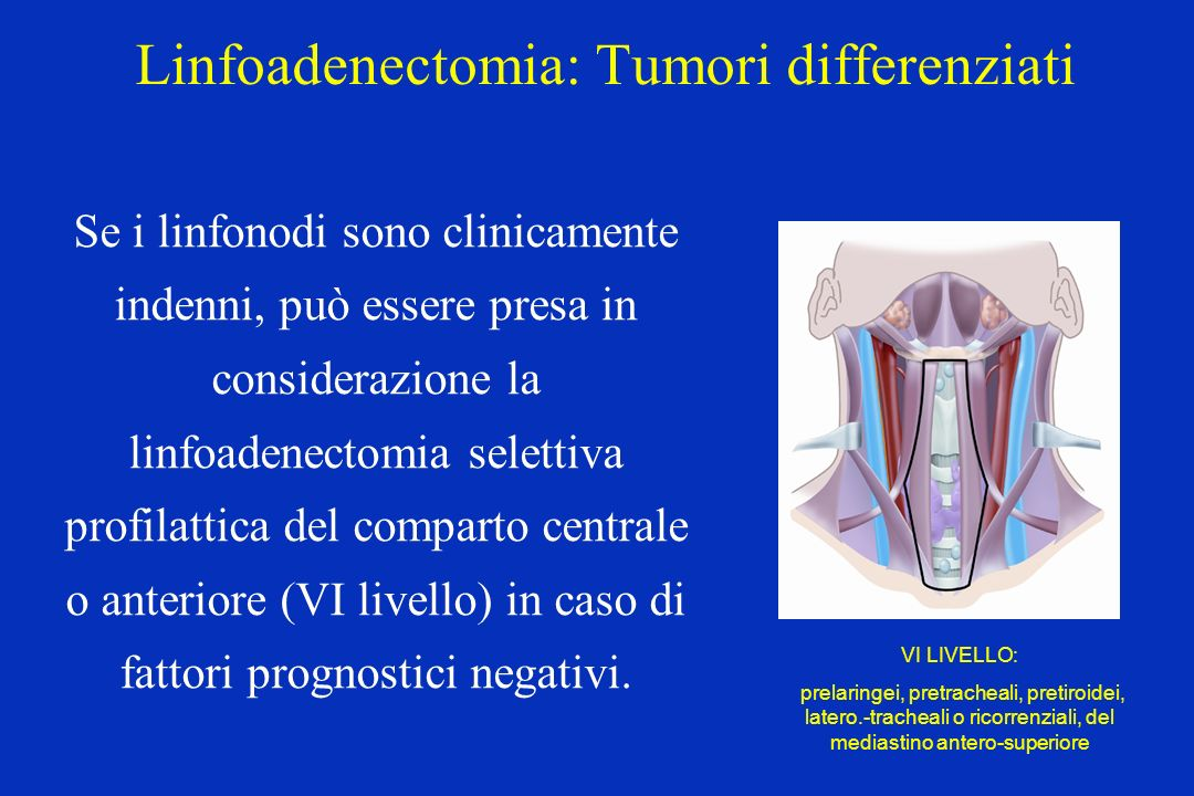 Linfoadenectomia: Tumori differenziati Se i linfonodi sono clinicamente indenni, può essere presa in considerazione la linfoadenectomia selettiva prof